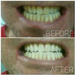 how to start a mobile teeth whitening business
