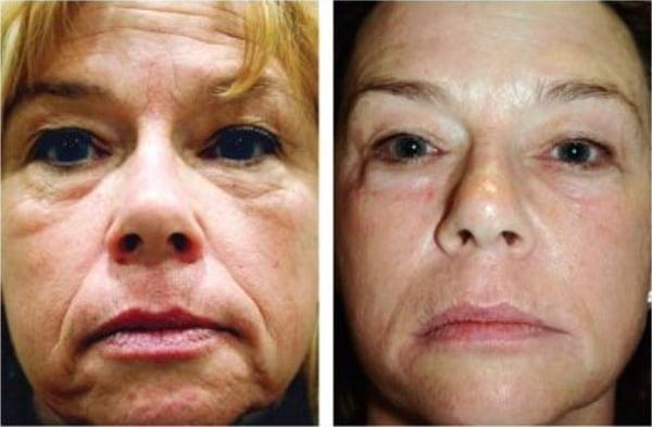 Dr john layke dark spot treatment review caroldoey