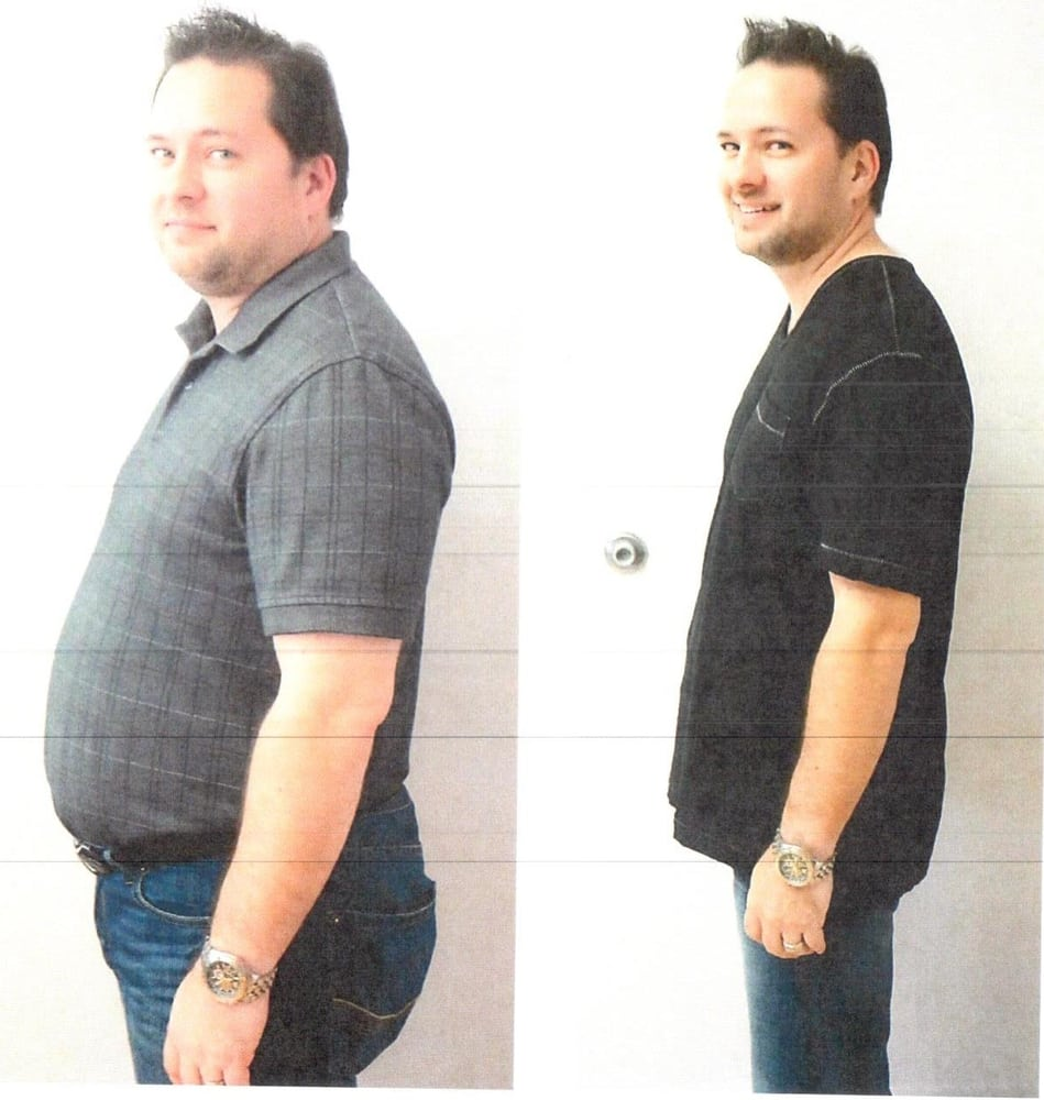 Weight loss programs acworth ga photo 3
