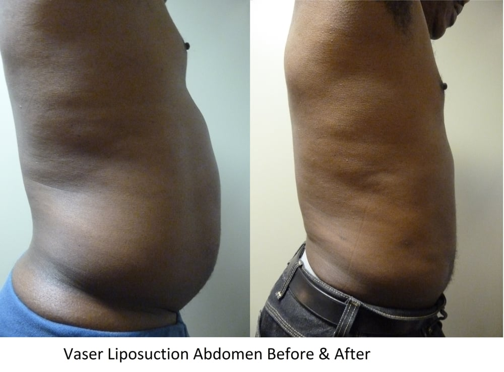 Vaser Liposuction and Buttock Fat Transfer Before & After | Yelp