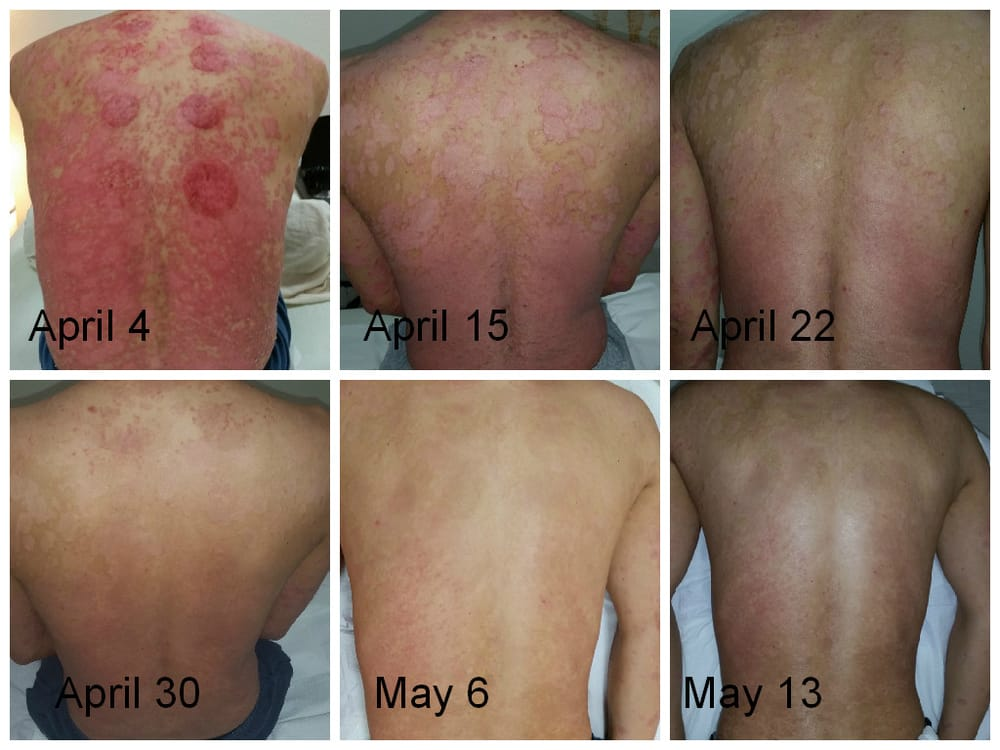To our knowledge, it is the first report about cupping therapy leading to KP in a psoriasis patient 2