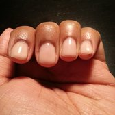 how to heal nails cut too short