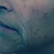 All About You Face & Body Care - Long Beach, CA, États-Unis. The Perfect Dermal Peel Before