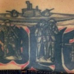 Erase tattoo removal tattoo removal oak brook il for Eraser tattoo removal austin