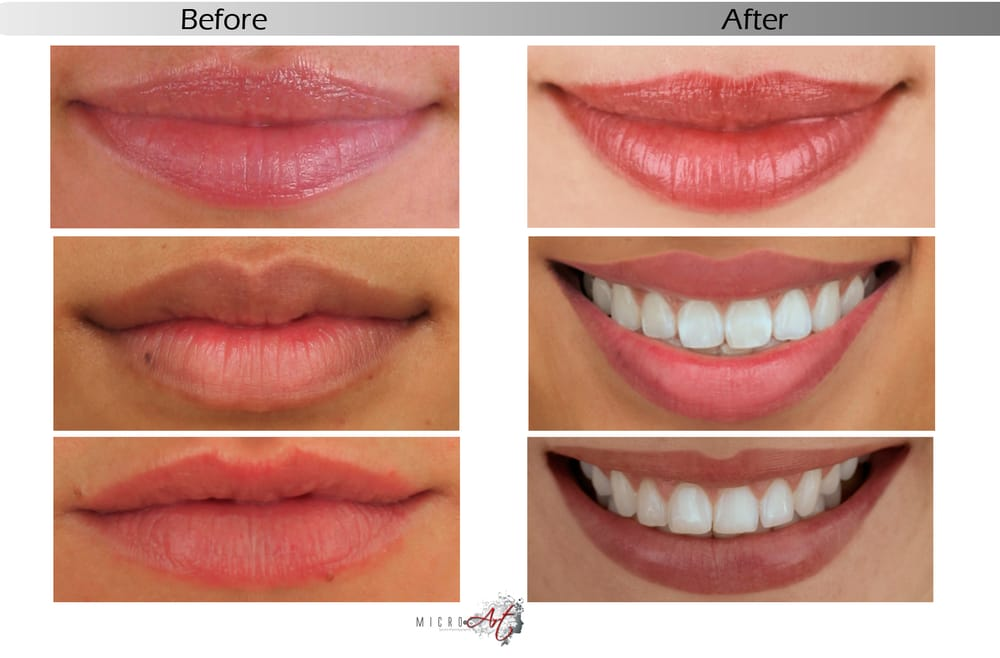bloggerim permanent makeup full lips before and after photos
