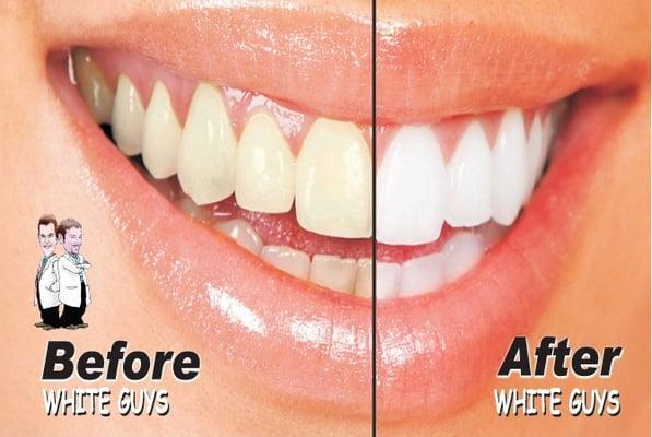 Teeth Whitening Davenport Teeth Whitening Davenport