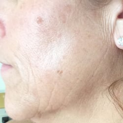 All About You Face & Body Care - Long Beach, CA, États-Unis. The Perfect Dermal Peel After