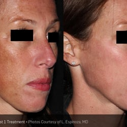 Phoenix facial line removal — pic 9