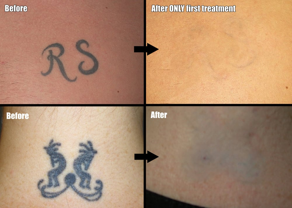 blank magic non laser tattoo removal closed tattoo