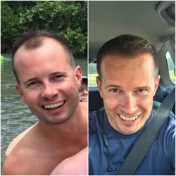 THE BEST 10 Hair Loss Centers in Austin, TX - Last Updated
