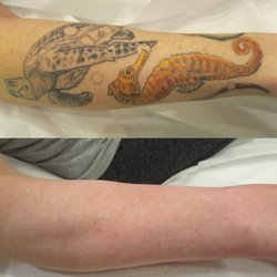 Precision Laser Tattoo Removal Skin Care Tatoeage