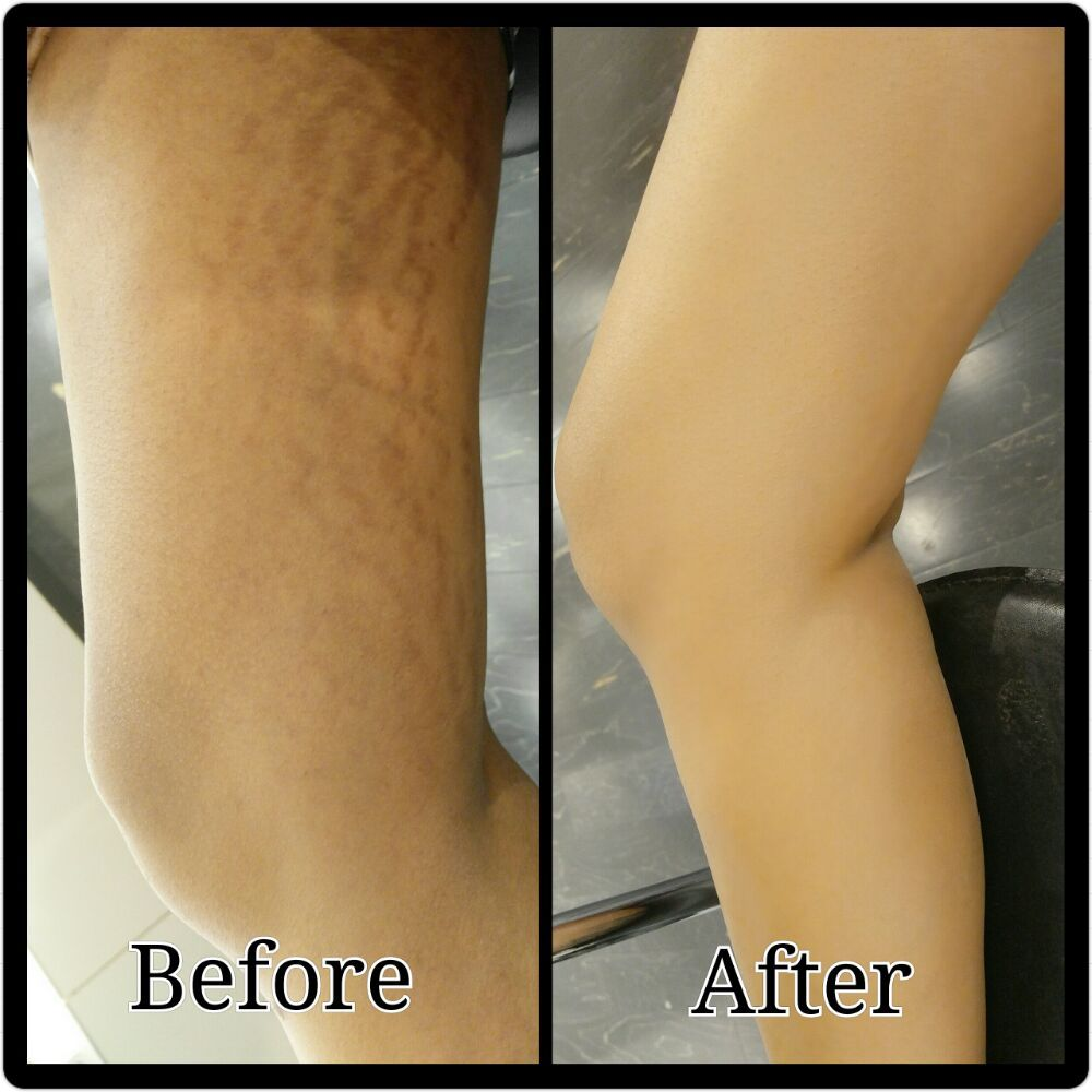 How To Hide Scars On Legs With Makeup