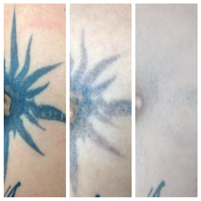 Free consultation call 972 323 2020 yelp for Dallas tattoo removal clinic reviews
