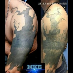 Milwaukee Laser Tattoo Removal - 13 Photos - Tattoo Removal - 4328 W ...