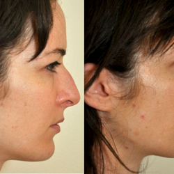 Facial cosmetic procedures and md