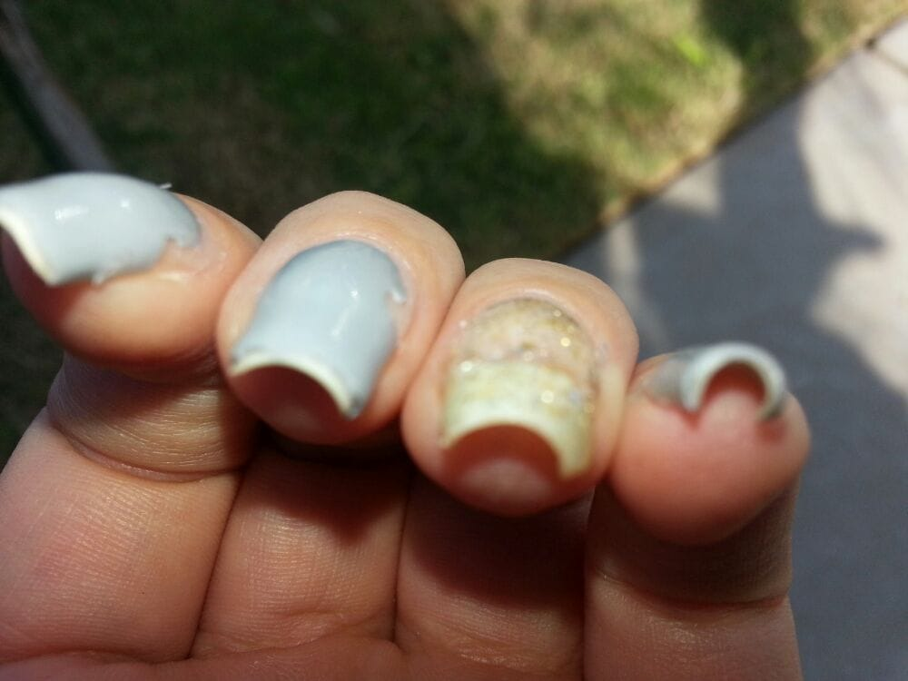 Photo Of Luxor Nails Spa Fresno Ca United States My Damaged