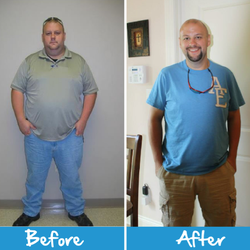 Roller Weight Loss And Advanced Surgery Weight Loss Centers 1695
