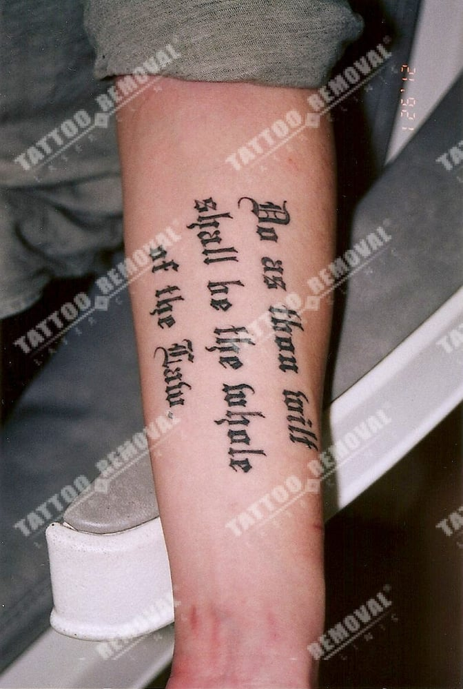 Chinese client from shanghai china with a script forearm for Tattoo removal business