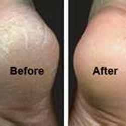 ms glen s therapeutic manicures pedicures 239 photos
