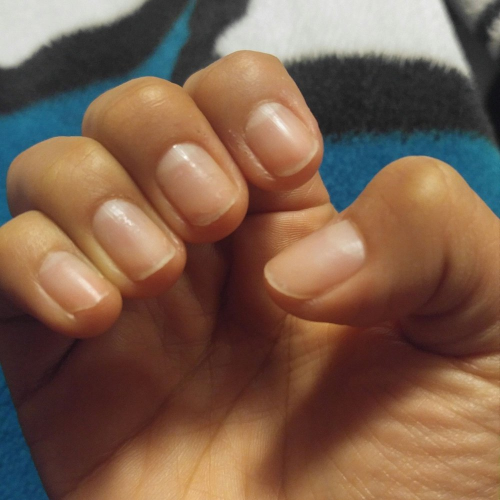 One month later and still growing them out. They\'re so thin now i ...