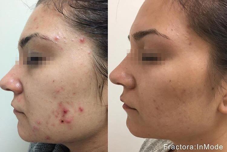 cystic acne svenska
