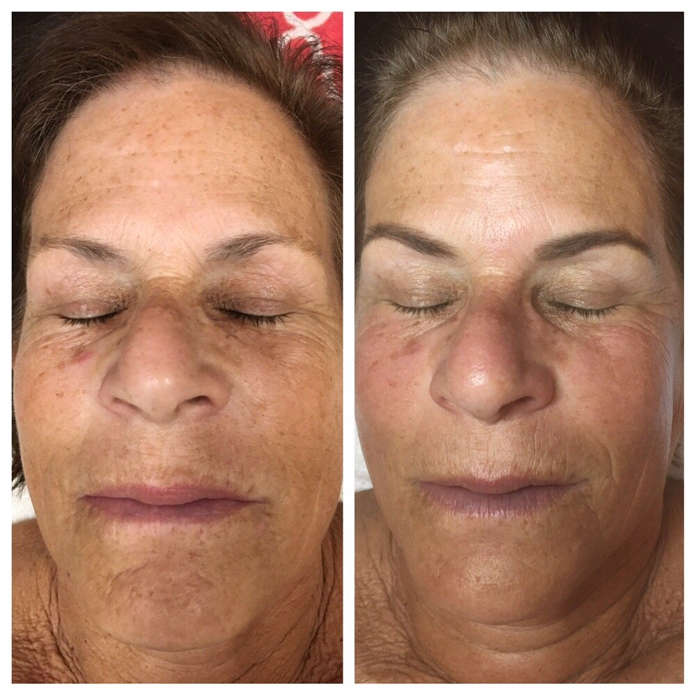 Before and After: Microdermabrasion, Enzyme Peel and Brow Tint  - Yelp