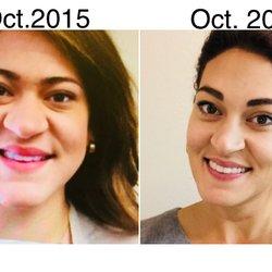 Alto facial palo plastic surgery