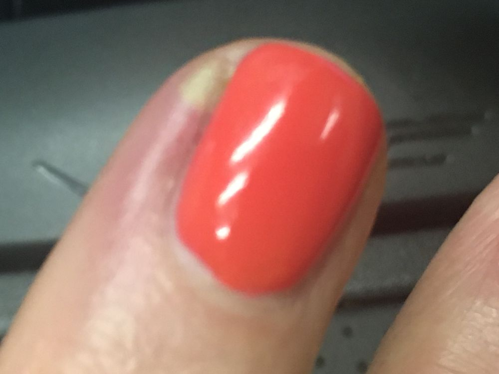 Finger is infected. green, puss filled and throbbing. - Yelp
