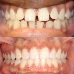 Tribeca Dental Care - 43 Photos & 113 Reviews - General