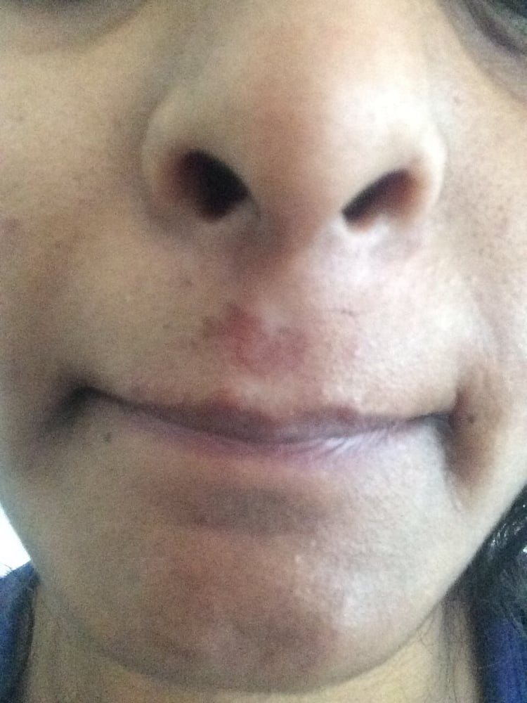 I Got My Upper Lip Waxed And This Is What The Result Is The Upper