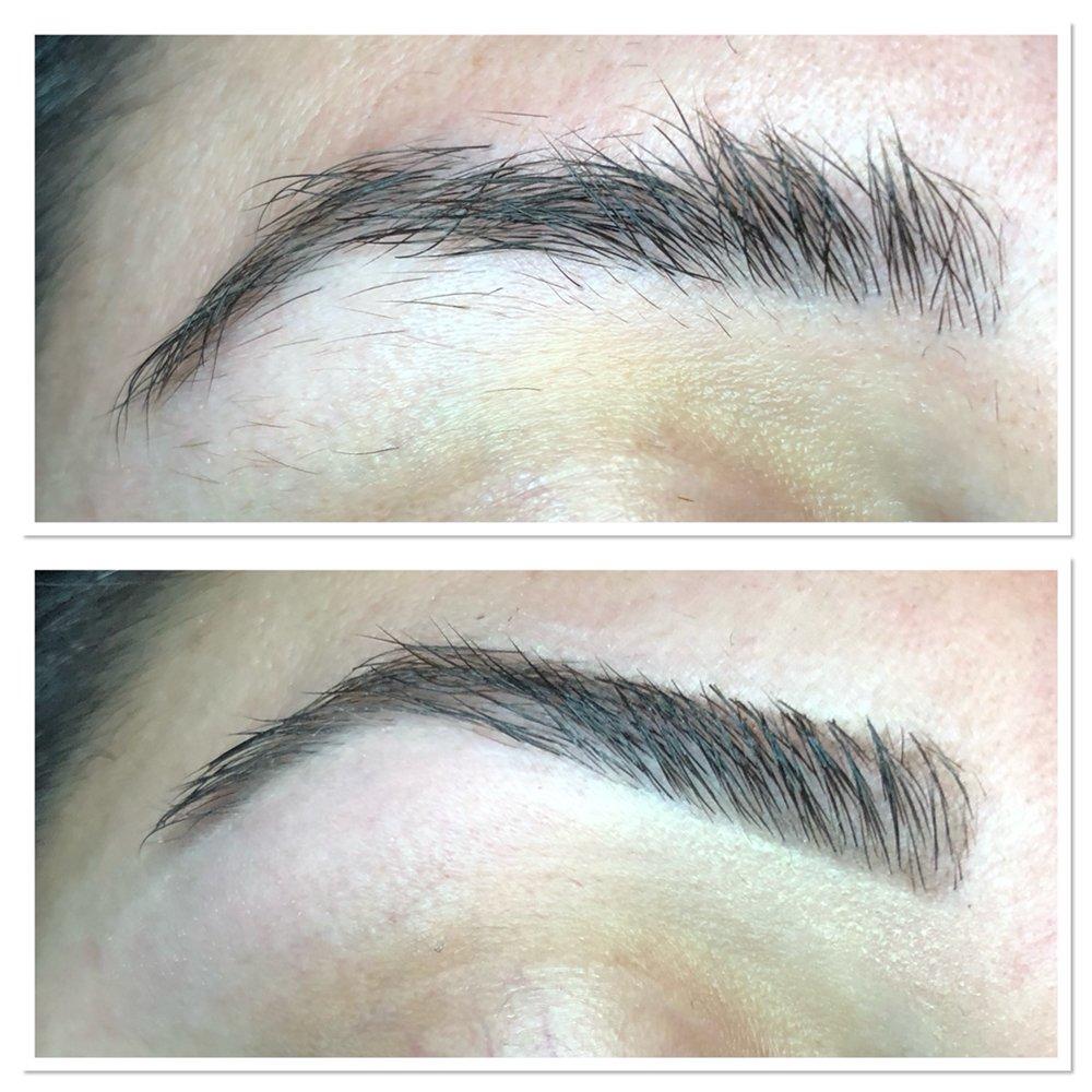 Eyelash Lift Done On Misdirected Eyelashes That Grow Toward The Eye