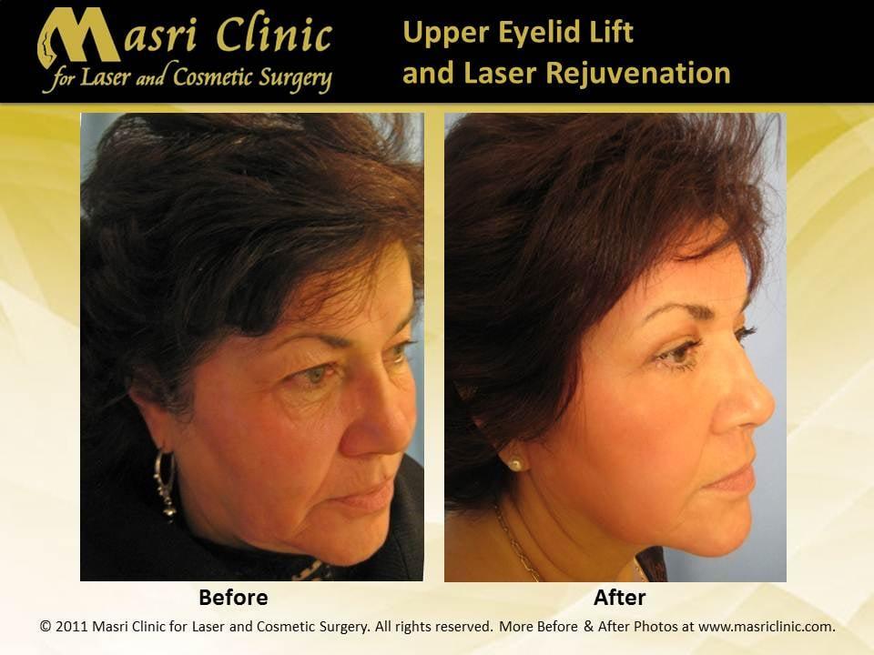 After upper and lower eyelid surgery (blepharoplasty), skin