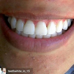 Smilelabs Of Pleasanton 19 Photos 23 Reviews Teeth Whitening 818 Main St Ca Phone Number Yelp