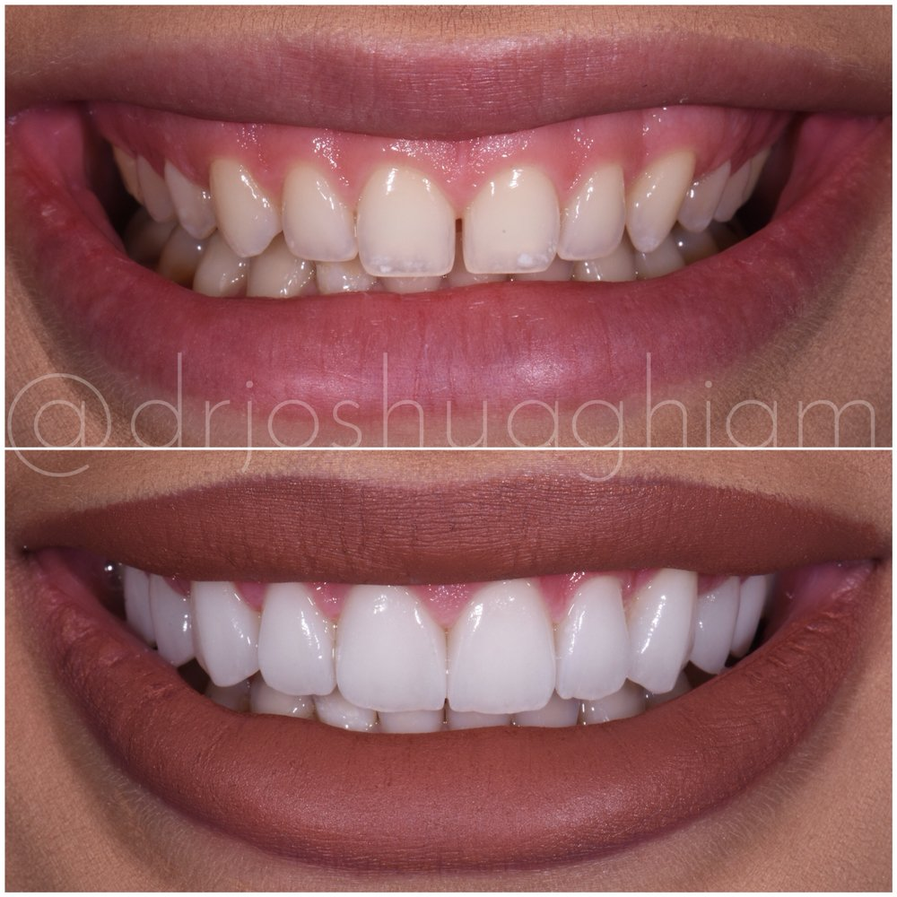 Consider, that photos shaved teeth for porceline veneers does