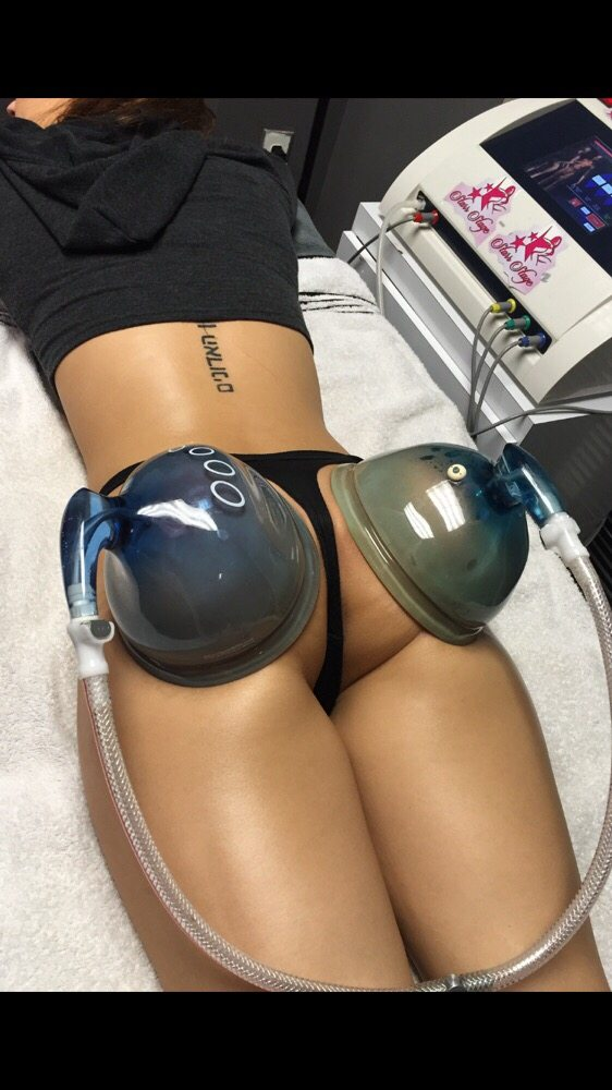 Our non-surgical buttocks enhancement lift procedure. - Yelp
