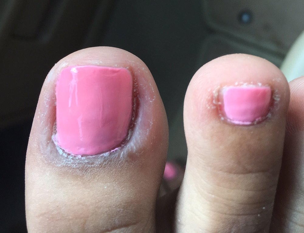 Worst pedicure I\'ve ever had! Avoid Dom! - Yelp