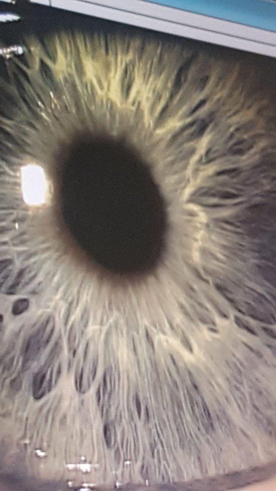Laguna Augenpflege