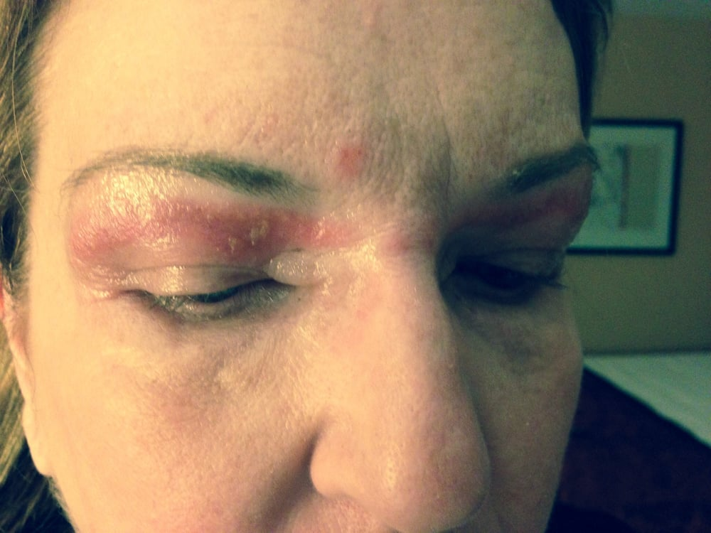 This Is A Eyebrow Wax Gone Wrong 2nd Degree Abrasion Swelling