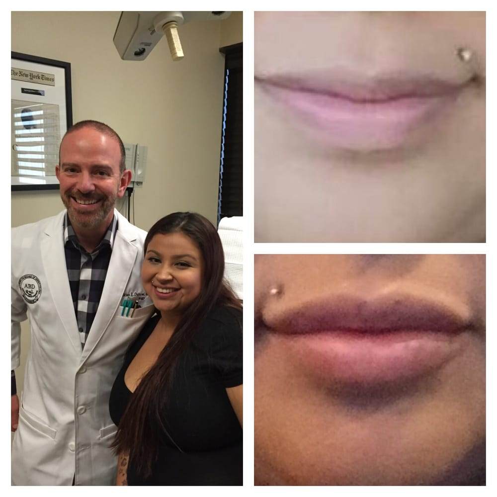 dubow dermatology laser photos reviews dubow dermatology laser 15 photos 55 reviews dermatologists 435 n roxbury dr beverly hills ca phone number yelp