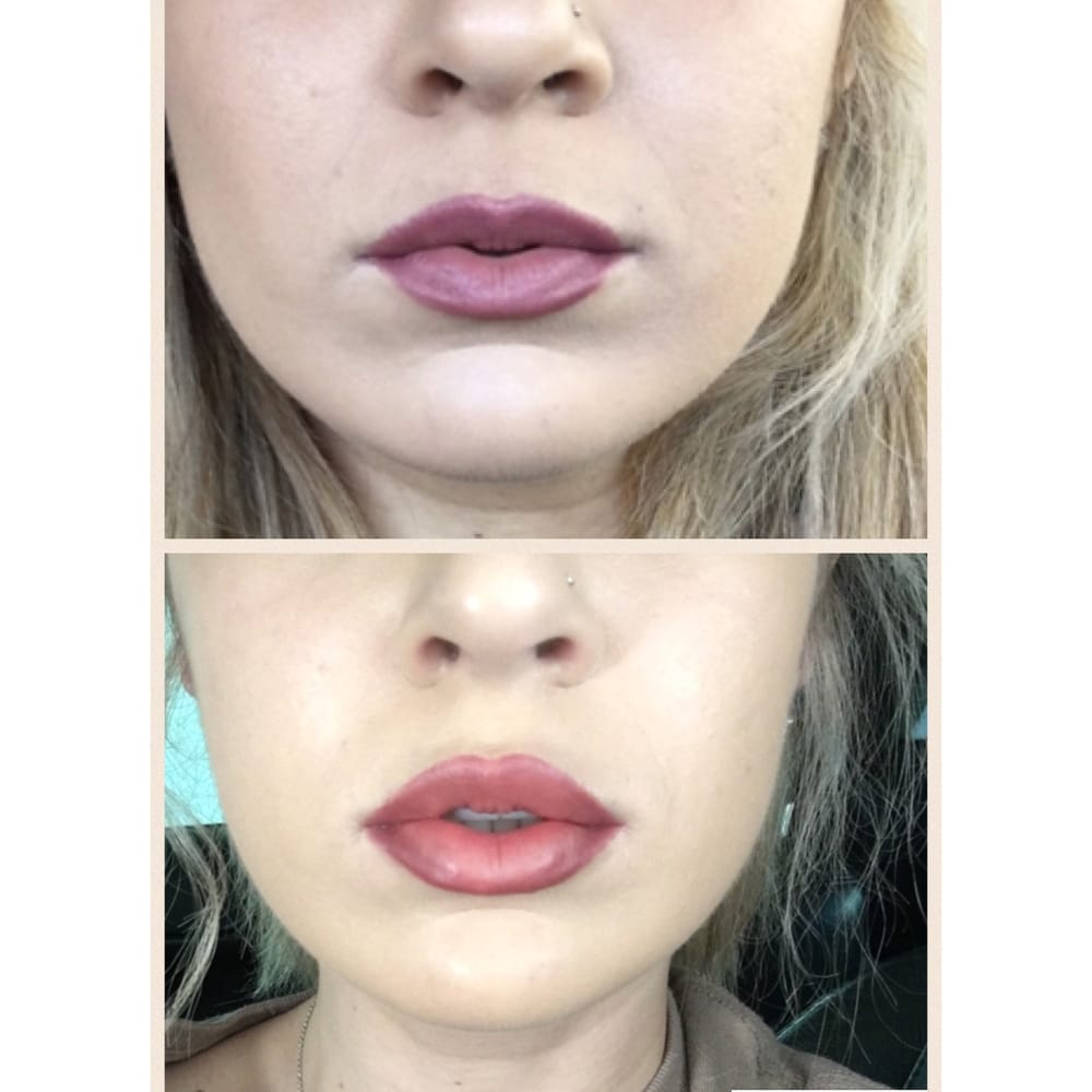 Cosmetic Injectables By Lisa - 23 Photos & 30 Reviews
