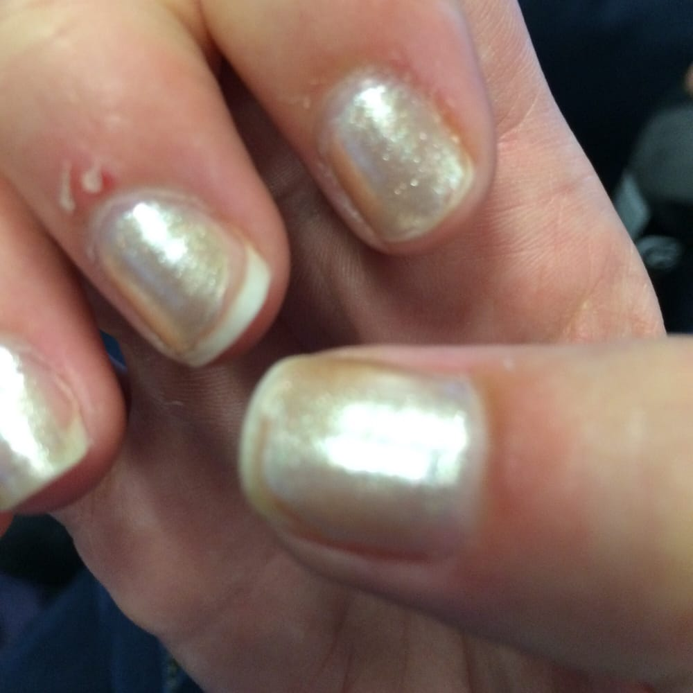 Torn and infected cuticles a few days post mani :( - Yelp