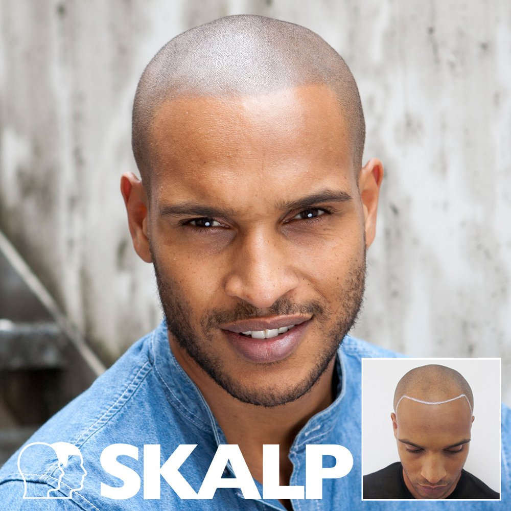 Each Smp Hair Tattoo Treatment Is Individual To The