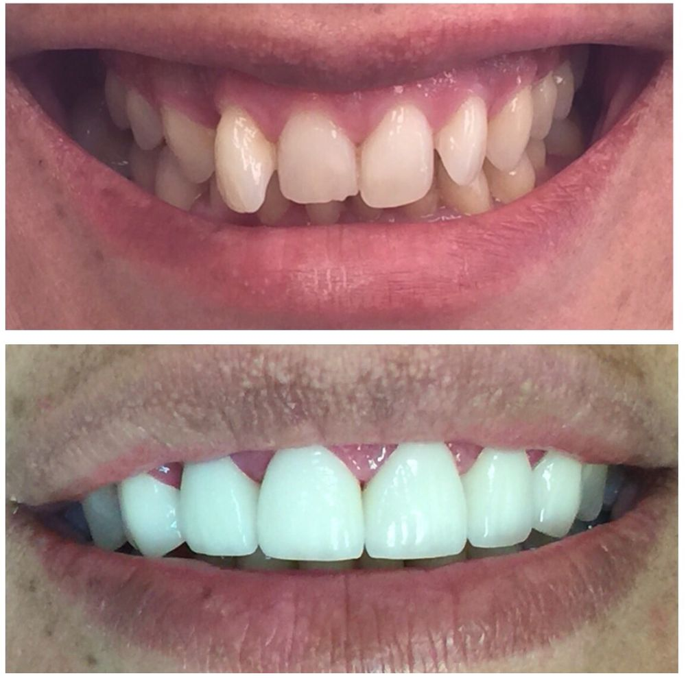 Mira Dental Care