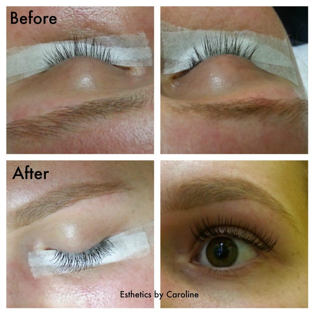 Esthetics By Caroline Closed 20 Photos 13 Reviews Skin Care