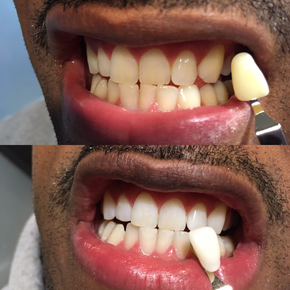 District Teeth Whitening: 641 S St NW, Washington, DC, DC