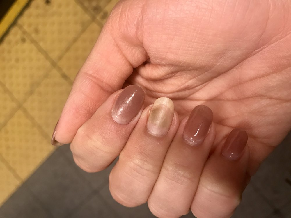 Fungus developed under my SNS nail due to lifting/water getting ...
