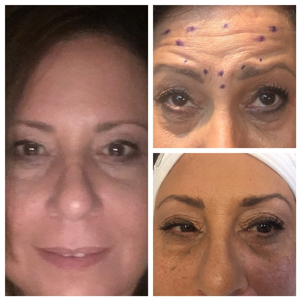Botox and under eye prp treatment  Photo to the left is 5