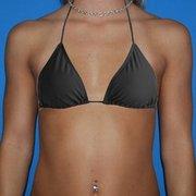 Breast augmentation brandon fl