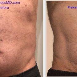 Precision Aesthetics - 26 Photos - Skin Care - 10 W 74th St, Upper