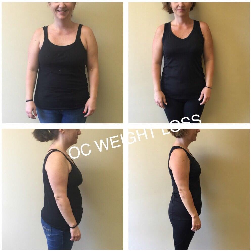 oc wellness and weight loss center